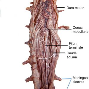 Section 1 Chapter 3 Anatomy Of The Lumbar Nerves Wheeless Textbook Of Orthopaedics In tight filum terminale syndrome, the spinal cord is tightly tethered. anatomy of the lumbar nerves
