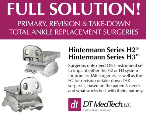 Hintegra Total Ankle Replacement